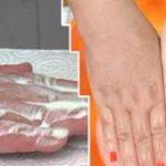 Ezzel az  egyszerű módszerrel akár 2 nap alatt ismét fehér és foltoktól mentes lehet a kezed
