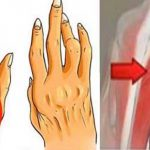 Ez a kevésbé ismert egyszerű trükk segíthet felvenni a harcot az arthritis, isiász és hátfájás ellen, talán jobb is, mint a tabletták!