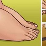 Ezzel az 5 módszerrel gyorsan kihajthatod a megrekedt vizet a testedből