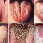 Vegyél egy közelebbi pillantást – nyelvünk színe elárulja, ha rákos megbetegedésünk van