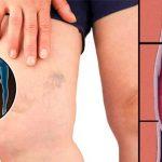 Ezekre a tünetekre kell odafigyelned, hogy elkerüld a trombózist