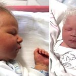 A baba fehér hajjal született, de amikor az orvosok kiderítették az okot, a szülők nem …