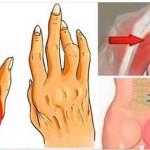 Ez kevéssé ismert egyszerű trükk segít felvenni a harcot az arthritis, isiász és hátfájás ellen, jobb, mint a tabletták!
