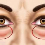 Vess véget a szem alatti duzzanatnak és sötét karikáknak – Kipróbáltunk sok praktikát és ezek amik valóban működnek