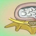 2 nagyon hatékony módszer az ágyéki idegbecsípődés okozta elviselhetetlen fájdalom ellen!