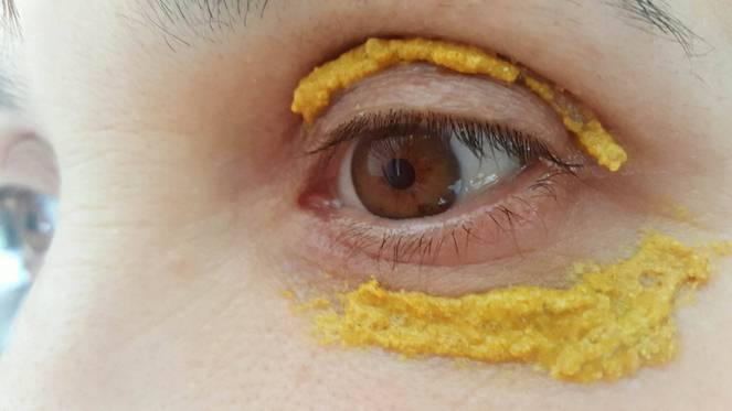 Kurkumát kent a szeme köré, 10 perccel később hihetetlen dolog történt