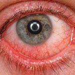 Használod a következő gyógyszerek bármelyikét? Ellenőrizd, hogy milyen hatással lehet a látásodra!