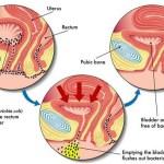 Kerüld el a rettentően fájdalmas húgyúti fertőzést – Így védekezz ellene!