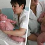 A nő 18 kg súlyú gyermeket szült – a világon a legnagyobbat