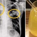 A tavaszi köhögés és légúti fertőzések megszüntetésének egyik leggyorsabb gyógymódja