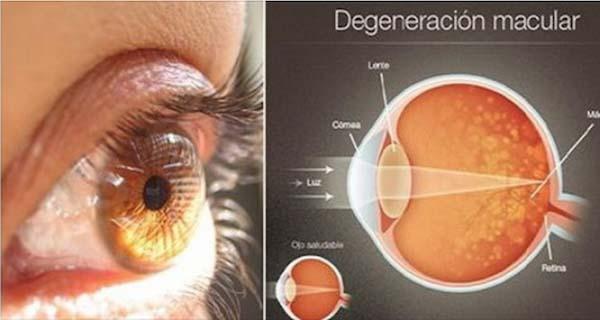 Dobja el a szemüvegét. Ez az összetevő 97%-al visszaállítja a látását