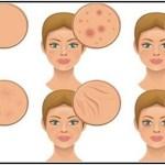 6 élelmiszer, ami felborítja a hormonháztartást és tönkreteszi a bőrt – Ezzel visszaállíthatod…