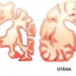 Ezt adta a férjének naponta kétszer, és megállította vele az Alzheimer kór pusztítását az agyában