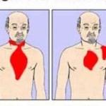 A szívroham közeli állapot négy tipikus jele