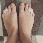 Sebtapasszal ragasztotta le két lábujját – Ha megtudod miért, még ma ki fogod próbálni te is
