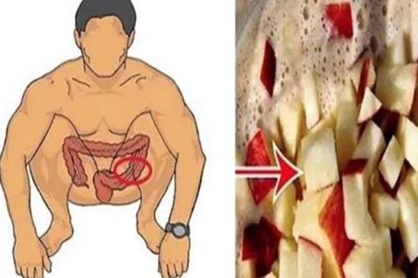 Tisztítsd ki a vastagbeled ezzel, és 20 nap alatt már akár több kilótól is megszabadulhatsz