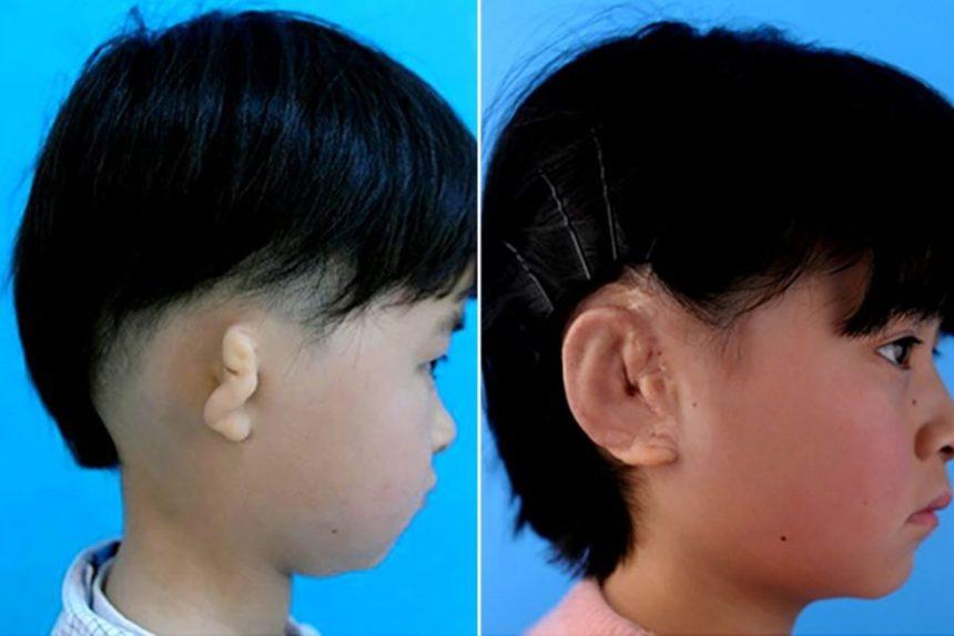 3D-printing-ear-3D-Printing-Human-Organs