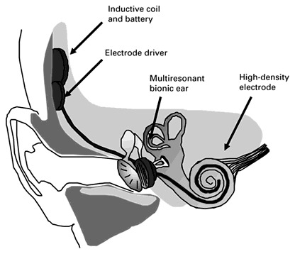 bionic-ear-working-concept-auditory-sensing-3D-printed-ear-electronics