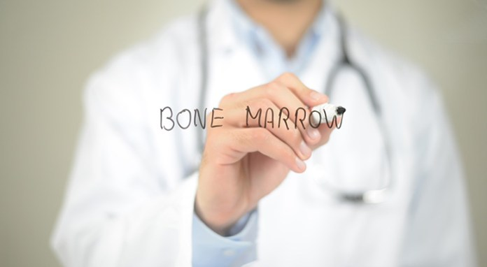 Indications that reflect you require a Bone Marrow Transplant