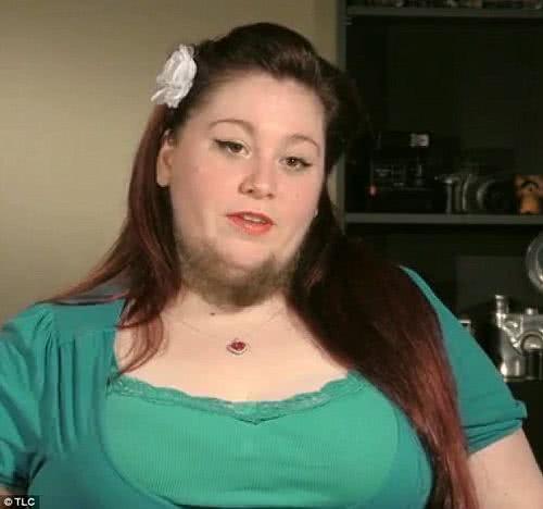 美國「鬍鬚女」安娜麗莎‧哈克曼