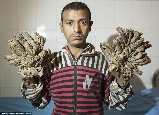 孟加拉男子手腳都長出「樹根」