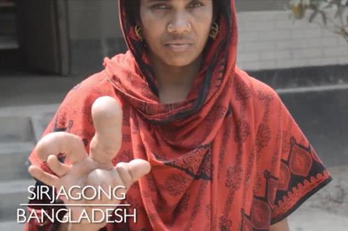 孟加拉女子貝古姆右手長水泡腫大如球