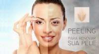 peeling dermatologista