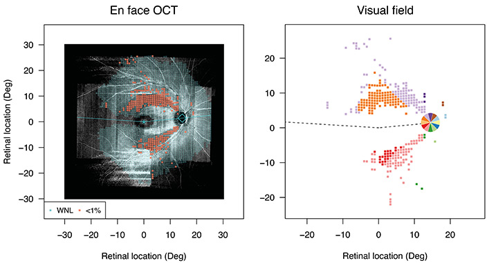 Two graphs showing the team's en face OCT mapping research findings.