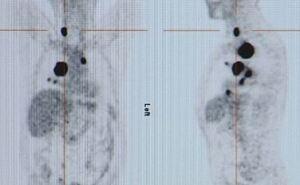 Investigación del cáncer