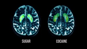 fed-up-sugar-cocaine-brain-scan-620