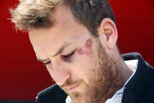 El jove de Cadaqués que ha denunciat la pallissa, Rafa Martín, té un ull de vellut i diverses marques per tot el cos (Horitzontal)