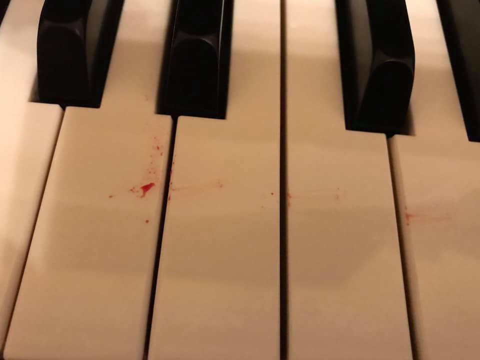 """""""Beethoven ist der Größte, den wir haben. Aber hier einfach mal ein Bild von einem mit Blut bespritzten Klavier. Aber wussten Sie, dass Beethoven der Größte war? Das größte Geschenk, das wir haben. Sehr. So so sehr."""""""