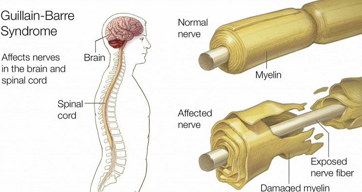 Image result for Guillain-barre syndrome