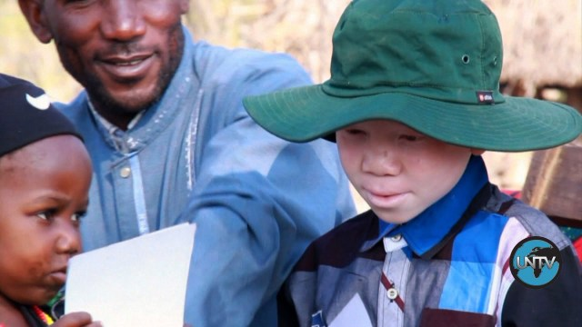 [UNStories #66] Tanzania: Superstition Threatens Albinos
