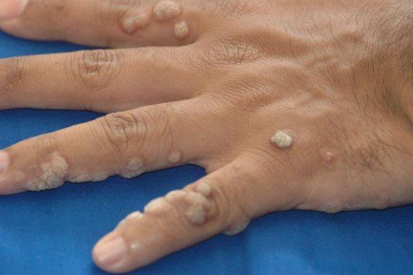bad hand warts