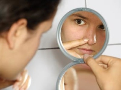 Acne Scars – How To Remove Scars Through Herbal Remedy