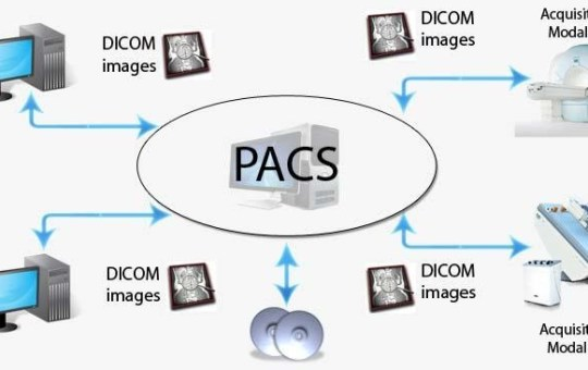 Different Types of PACS Systems?