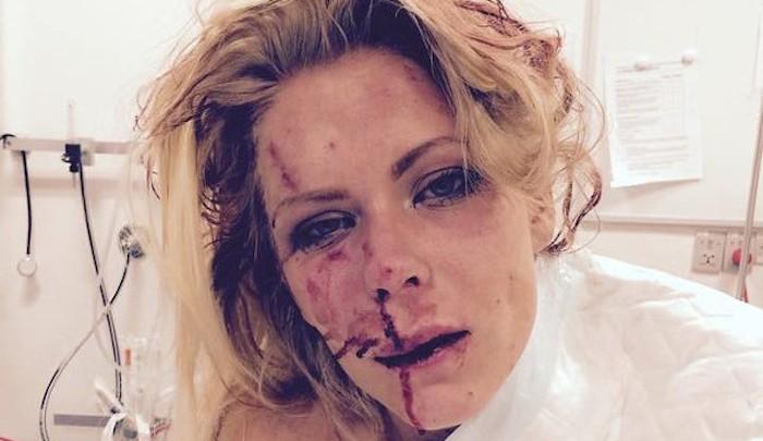 Nanna Skovmand, une femme danoise battue par des musulmans venus de Somalie.