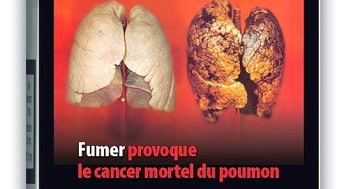 fumer-provoque-le-cancer-mortel-du-poumon