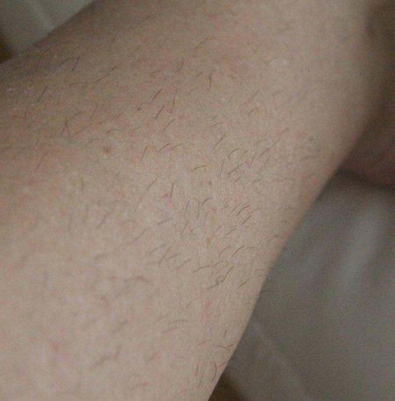 Braun Silk-epil7 SkinSpa - Dank redcoon