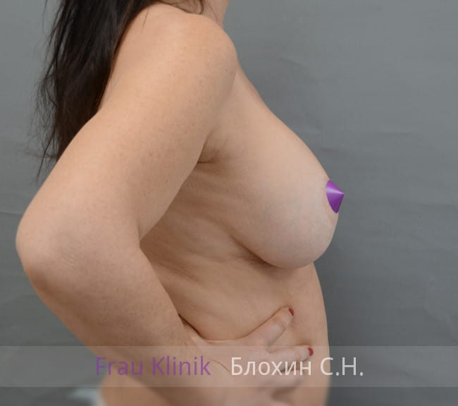 Повторная маммопластика 48