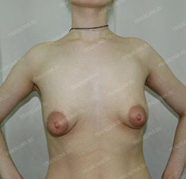 Коррекция тубулярной груди 3