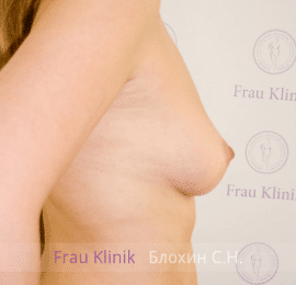 Увеличение груди 50