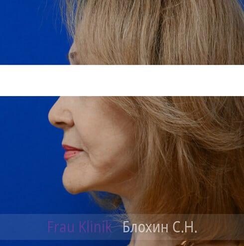 Круговая подтяжка лица 45