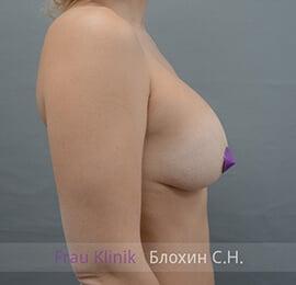 Повторная маммопластика 30