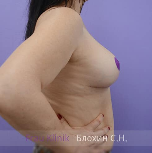 Уменьшение груди 32