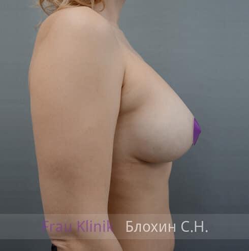 Повторная маммопластика 31