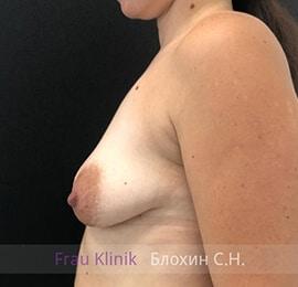Подтяжка груди 22