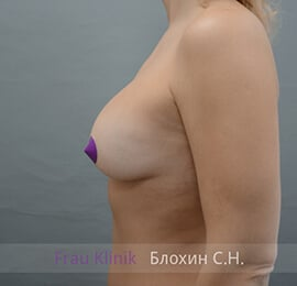 Повторная маммопластика 22