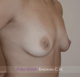 Увеличение груди 194
